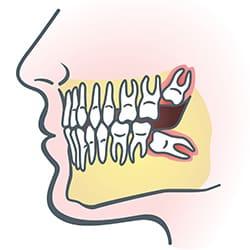 wisdom teeth illus